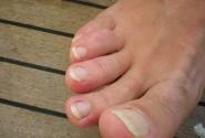 тайский педикюррр...ногти растут очень быстро и в разные стороны)))